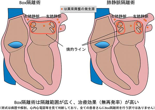 心房 細 動 再発 心房細動再発を予測する期待のバイオマーカー:日経メディカル